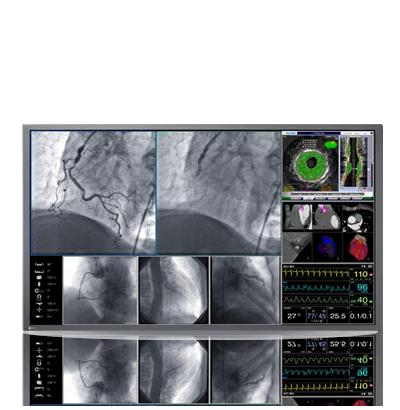 Zdjęcie monitora EIZO RadiForce LX600W