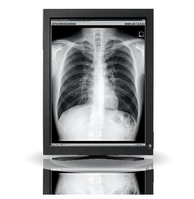 Zdjęcie monitora EIZO RadiForce GS320
