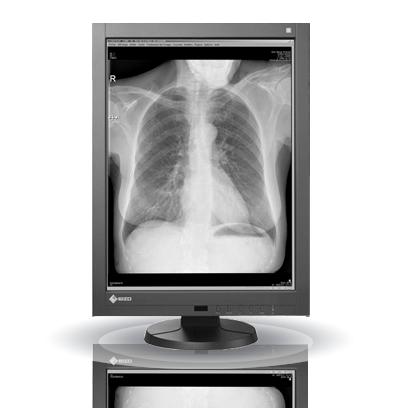 Zdjęcie monitora EIZO RadiForce GX340