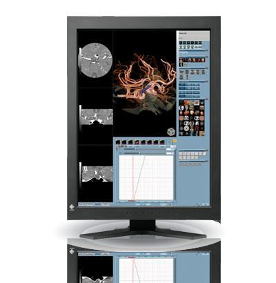 Zdjęcie monitora EIZO RadiForce RX320