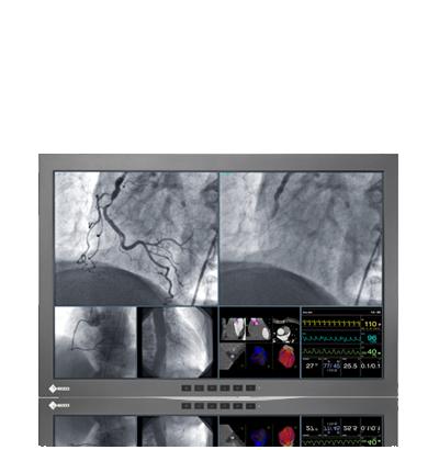 Zdjęcie monitora EIZO RadiForce LX300W