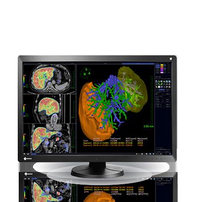 Zdjęcie monitora EIZO RadiForce RX650