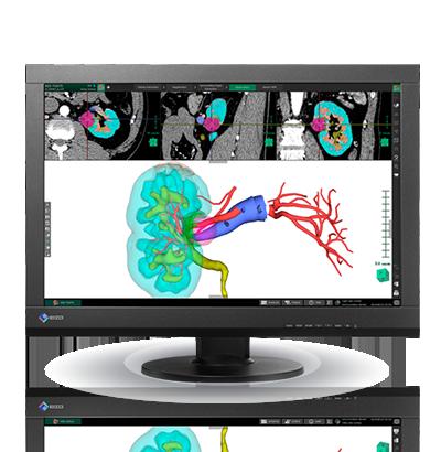 Zdjęcie monitora EIZO RadiForce MX242W