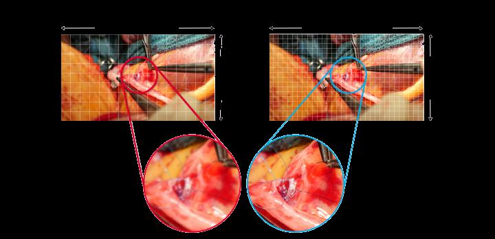 endoskopowe i chirurgiczne monitory 4K